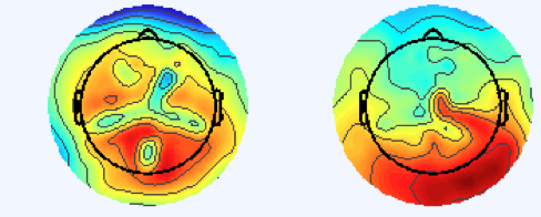 TWO TOPOGRAPHIC SCALP MAPS SHOWING EEG ACTIVITY DISTRIBUTED OVER THE SCALP.  POSITIVE ACTIVITY IS DEPICTED IN WARMER COLORS AND NEGATIVE ACTIVITY IN COOLER COLORS.